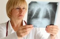 За рік у Павлограді виявили 95 хворих на туберкульоз
