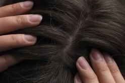 Педикулёз на Днепропетровщине находят даже в «благополучных» семьях